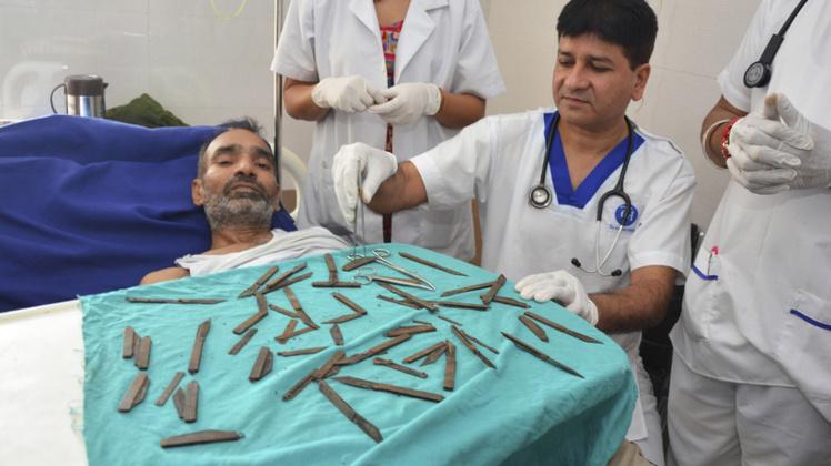 Inde : un homme opéré après avoir avalé 40 couteaux