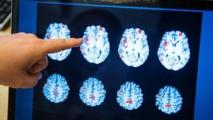 Une commotion cérébrale chez les jeunes peut avoir des effets à long terme (étude)