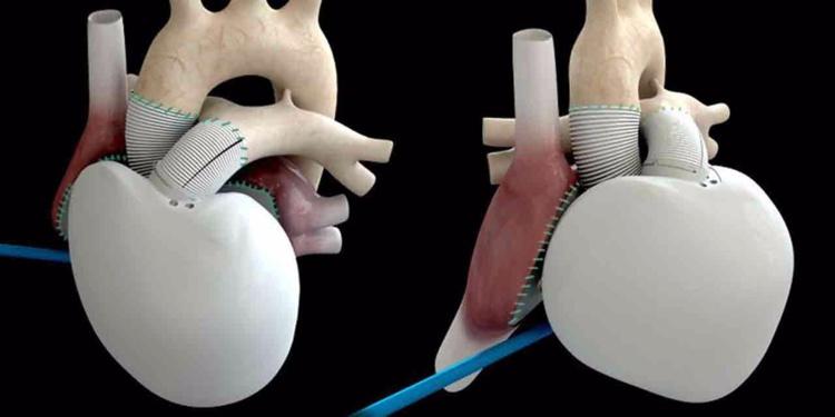 Carmat implante un premier coeur artificiel dans le cadre d'une nouvelle étude