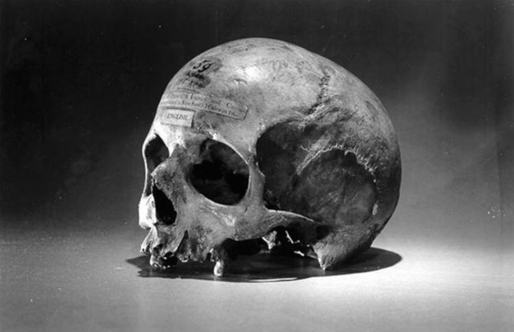 Le crâne de l'Irlandais ; après sa mort, son corps fut entièrement disséqué, dans le but de savoir si une anomalie physique pouvait expliquer ce cas de cannibalisme.