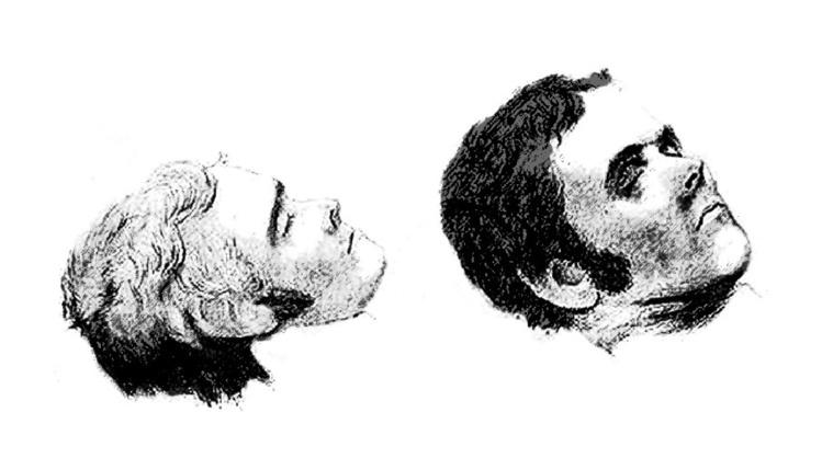 Avant de passer sur la table de dissection, un portrait post mortem de Pearce a été exécuté.