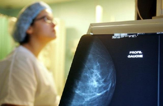 C'est à partir de 50 ans que le risque de développer un cancer du sein est le plus important. Photo : AFP