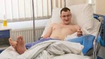 Pologne: un homme né sans main bénéficie d'une greffe