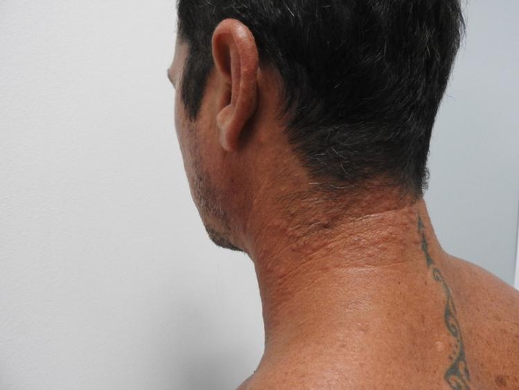 Le phénomène se traduit par l'éruption de petits boutons, qui irritent et démangent la peau.