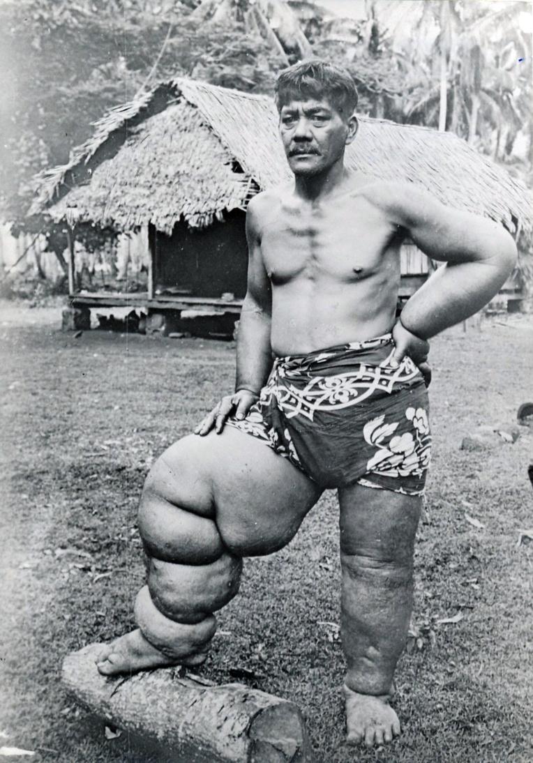 Eléphantiasis des jambes, Tahiti 1940
