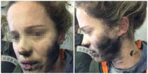 Australie: explosion en vol d'écouteurs alimentés par des batteries