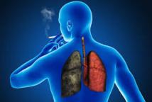 Sida: les fumeurs ont un risque nettement plus élevé de décéder d'un cancer pulmonaire