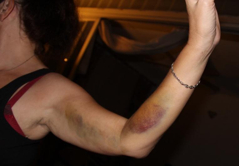 Violences faites aux femmes : les violences sexuelles en forte augmentation