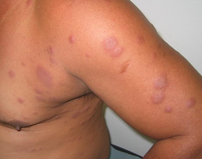 """""""En général, la lèpre donne des taches sur la peau, qui ne grattent pas et qui ne font pas mal"""", décrit taote Lam N'Guyen."""