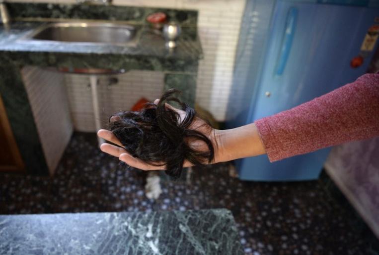 Des chercheurs japonais disent avoir trouvé une méthode de culture ultra-rapide des cheveux