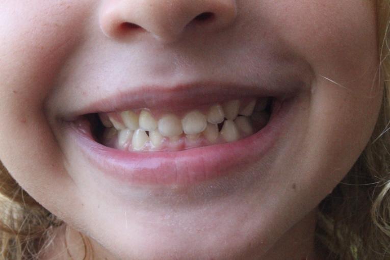 Journal des enfants : Tout savoir sur les dents, organe vivant de la dentition