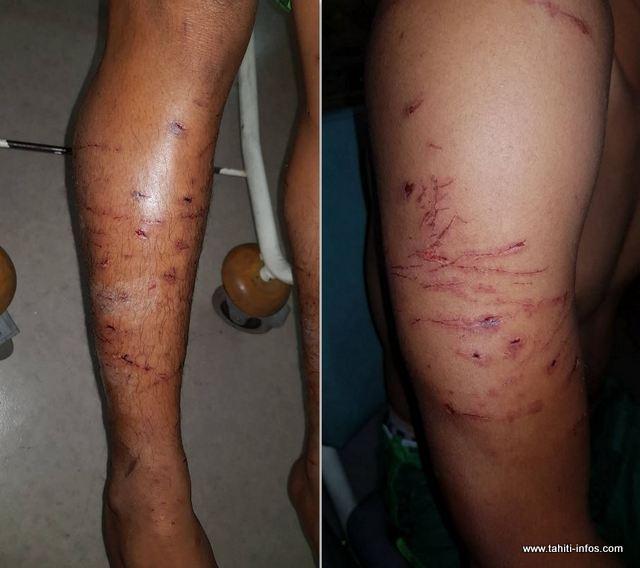 Six chiens s'en sont pris à ses bras et à ses jambes.