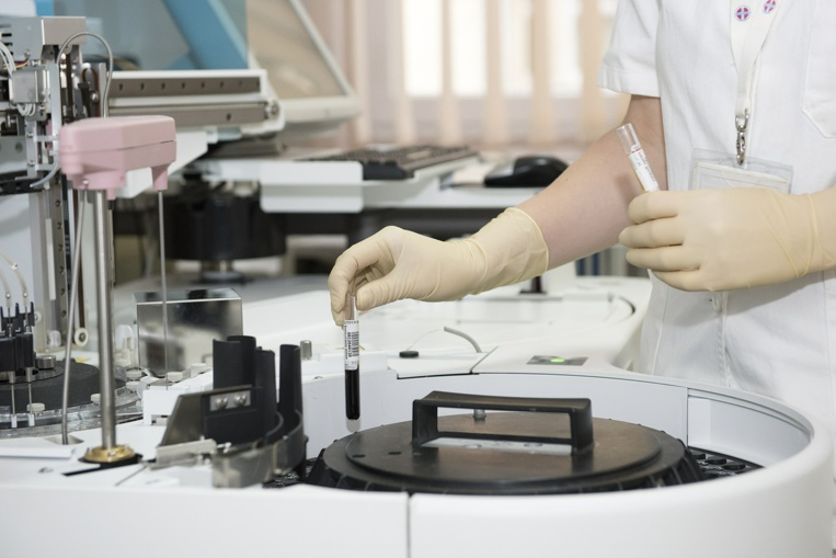 Une équipe toulousaine lance une étude pionnière sur des vaisseaux sanguins qui combattent le cancer