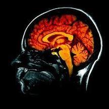 Alzheimer: le cerveau commencerait à se réduire 10 ans avant le diagnostic