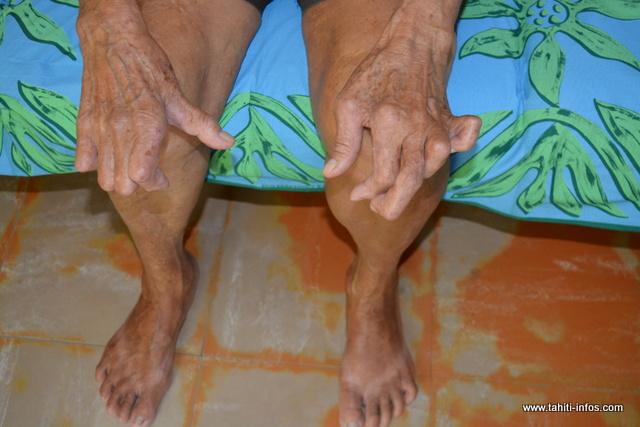 Page enfant : La lèpre circule toujours en Polynésie