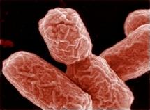 Bactérie mortelle: un cas confirmé aux USA après un voyage en Allemagne