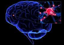 Alzheimer : des études pointent une relation avec des traumatismes cérébraux