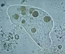USA: trois morts à la suite d'une infection rare du cerveau par une amibe