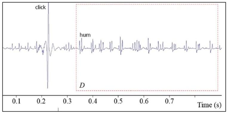 Oscillogrammes représentant les « hums » et « clics »
