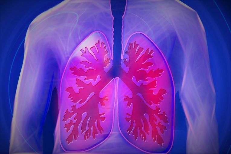 Cancers du sein, du poumon et du pancréas: de nouveaux traitements encourageants
