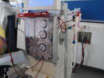 La dialyse permet de filtrer le sang des personnes dont les reins ne fonctionnent plus correctement.