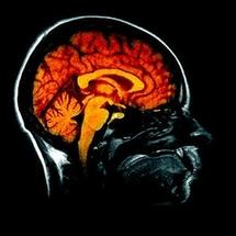 Exploration du cerveau: lire des images aujourd'hui, des pensées demain?