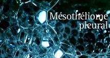 Déclaration désormais obligatoire pour le mésothéliome (cancer lié à l'amiante)