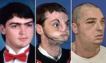 Greffe spectaculaire du visage aux Etats-Unis, la plus étendue à ce jour