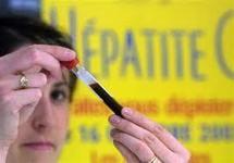Hépatites: Médecins du monde réclame l'autorisation des tests rapides