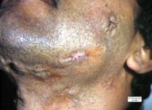 Recrudescence des cas de tuberculose à Madagascar