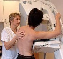Cancer du sein : une organisation américaine accusée de trop vanter la mammographie