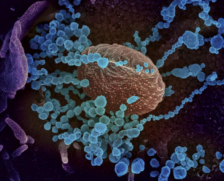 Coronavirus: même des malades faiblement atteints pourraient être immunisés