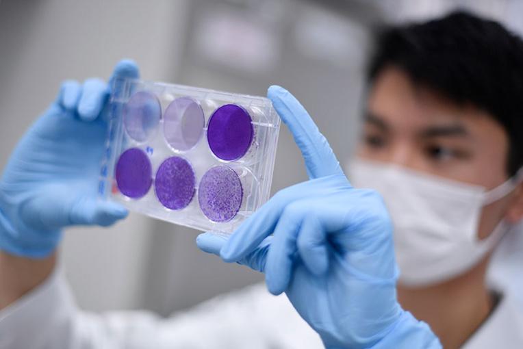 Covid-19: l'immunité pourrait disparaître en quelques mois, suggère une étude