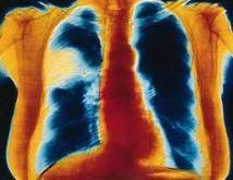 Un enfant meurt des suites d'une pneumonie toutes les 25 secondes dans le monde