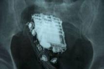 Un détenu trahi par la sonnerie du portable dissimulé dans... son corps
