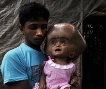 Inde : une petite fille au crâne hypertrophié suscite un élan de solidarité