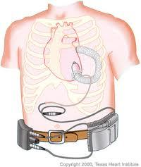 L'Agence du médicament retire certains dispositifs d'assistance cardiaque