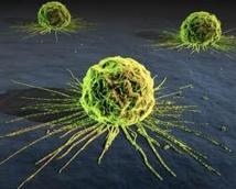 Le coût du cancer en Europe évalué à 126 mds EUR par an