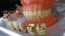 Les écologistes veulent une loi pour bannir le mercure dentaire