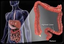 Cancer colorectal: les gastro-entérologues réclament le nouveau test de dépistage
