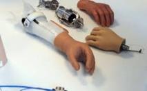Un amputé retrouve le sens du toucher grâce à une prothèse, une première