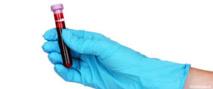 Un test sanguin pour détecter le risque d'apparition d'un Alzheimer dans les trois ans