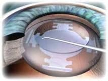 Cataracte: les ophtalmologues craignent une chirurgie au rabais
