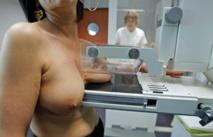 La mammographie en 3D plus efficace pour dépister des cancers du sein