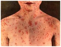 Rougeole: 320 morts et 20.000 contaminés en RDC depuis janvier (ONU).