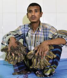 """Bangladesh: un """"homme-arbre"""" aux excroissances impressionnantes opéré"""