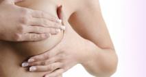 Une députée britannique reprend le bistouri contre le cancer du sein à Gaza