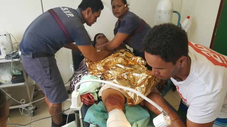 Le jeune homme a gravement été blessé au bras droit. Il a subi une intervention chirurgicale mardi matin et ne gardera probablement aucun handicap de sa mésaventure de lundi.
