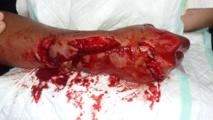 Morsures de requin à Makemo :Une bataille à mains nues entre les pêcheurs et l'animal