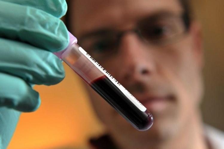 Un simple test sanguin plus efficace pour détecter des cancers